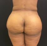 Fat Transfer - Gluteal