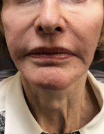 Around The Mouth Fillers