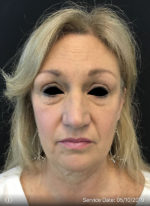 Around The Eye Fillers