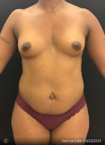 Fat Grafting to Breast