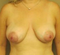 Breast Lift Before & After Results